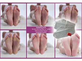 baby foot före och efter